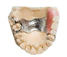 dental-care-coquitlam-denture-gallery-5